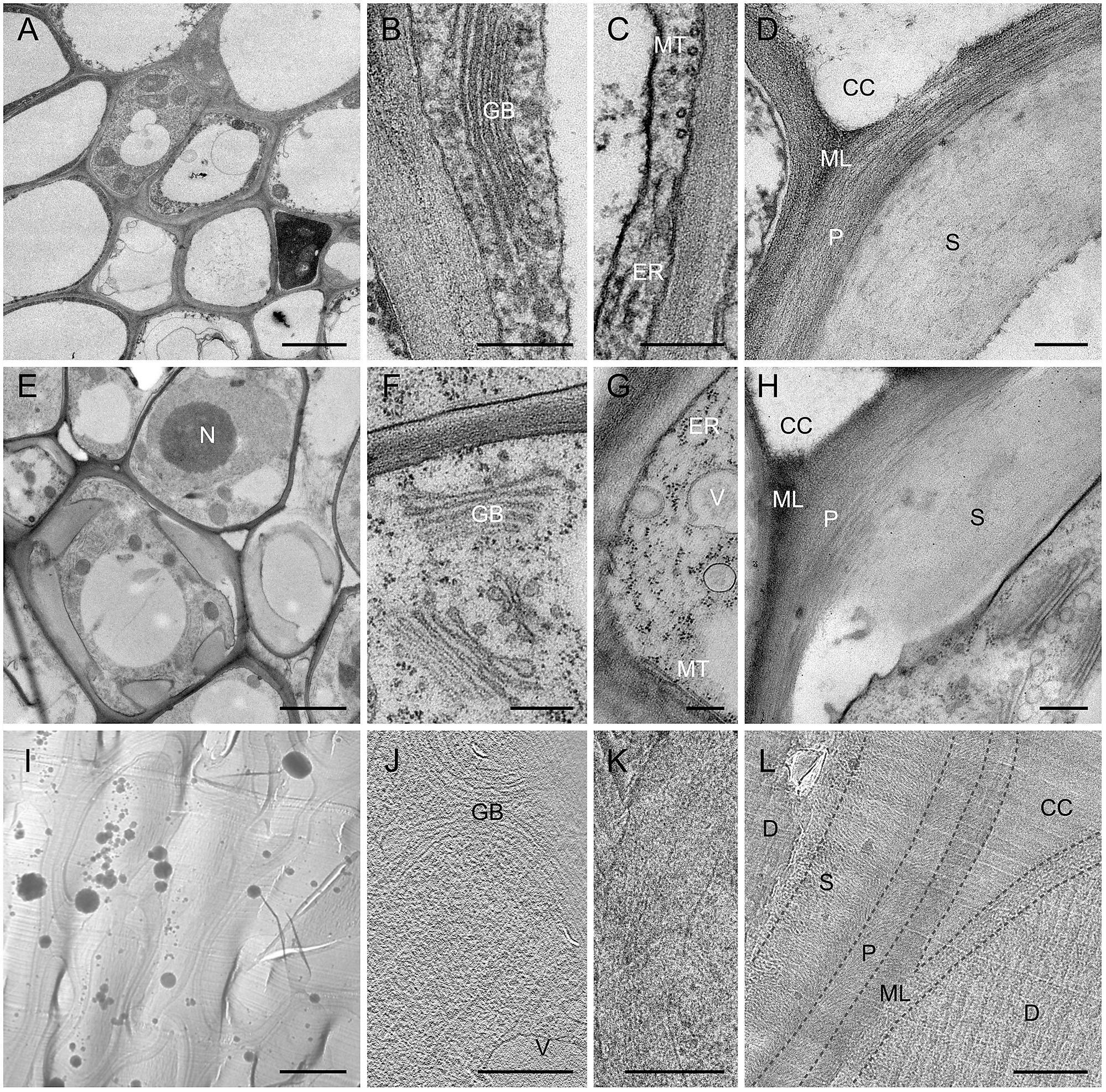 Plant Cell Transmission Electron Microscope Images ...