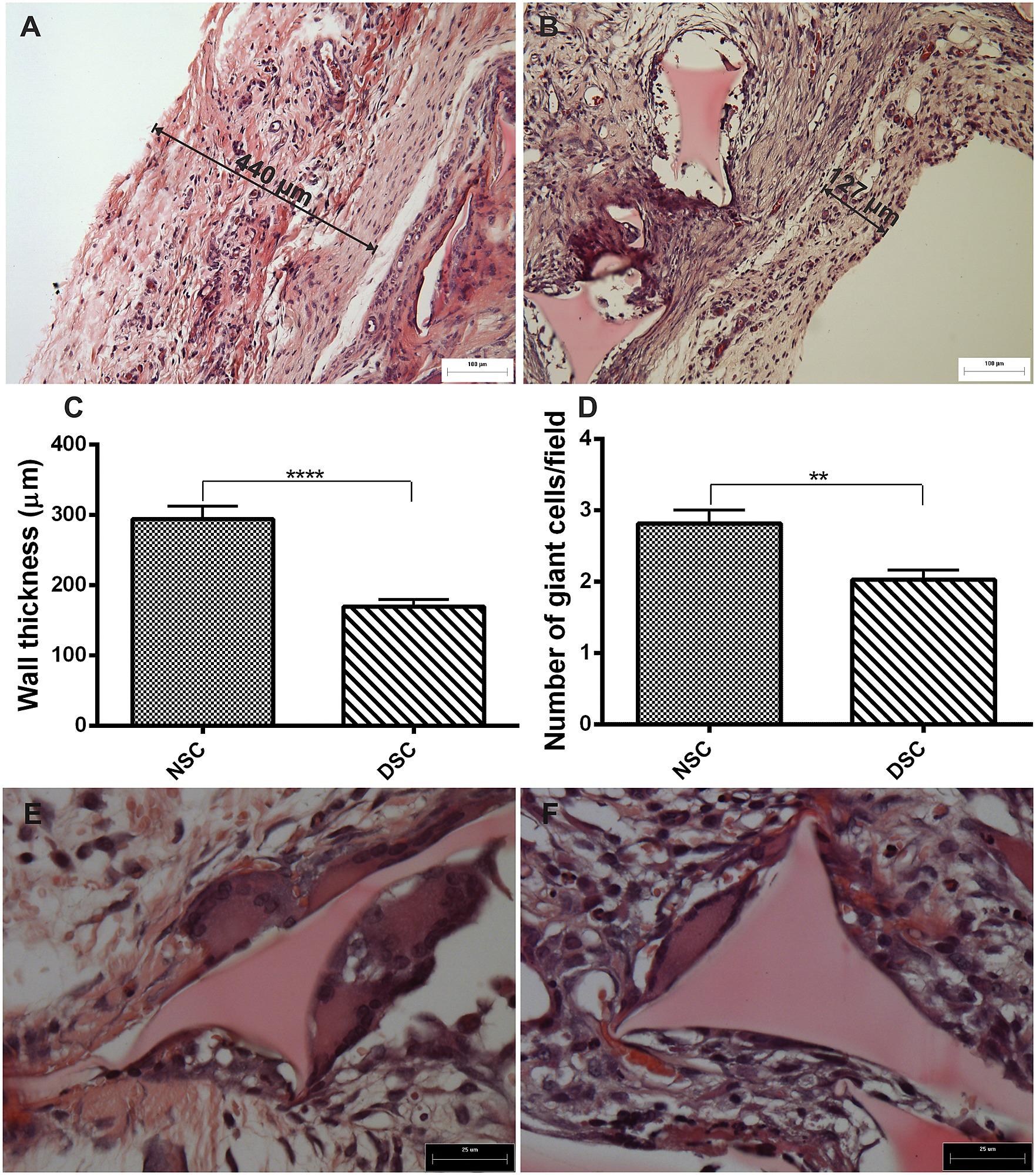 Histological Characteristics Of Implant Fibrous Capsule