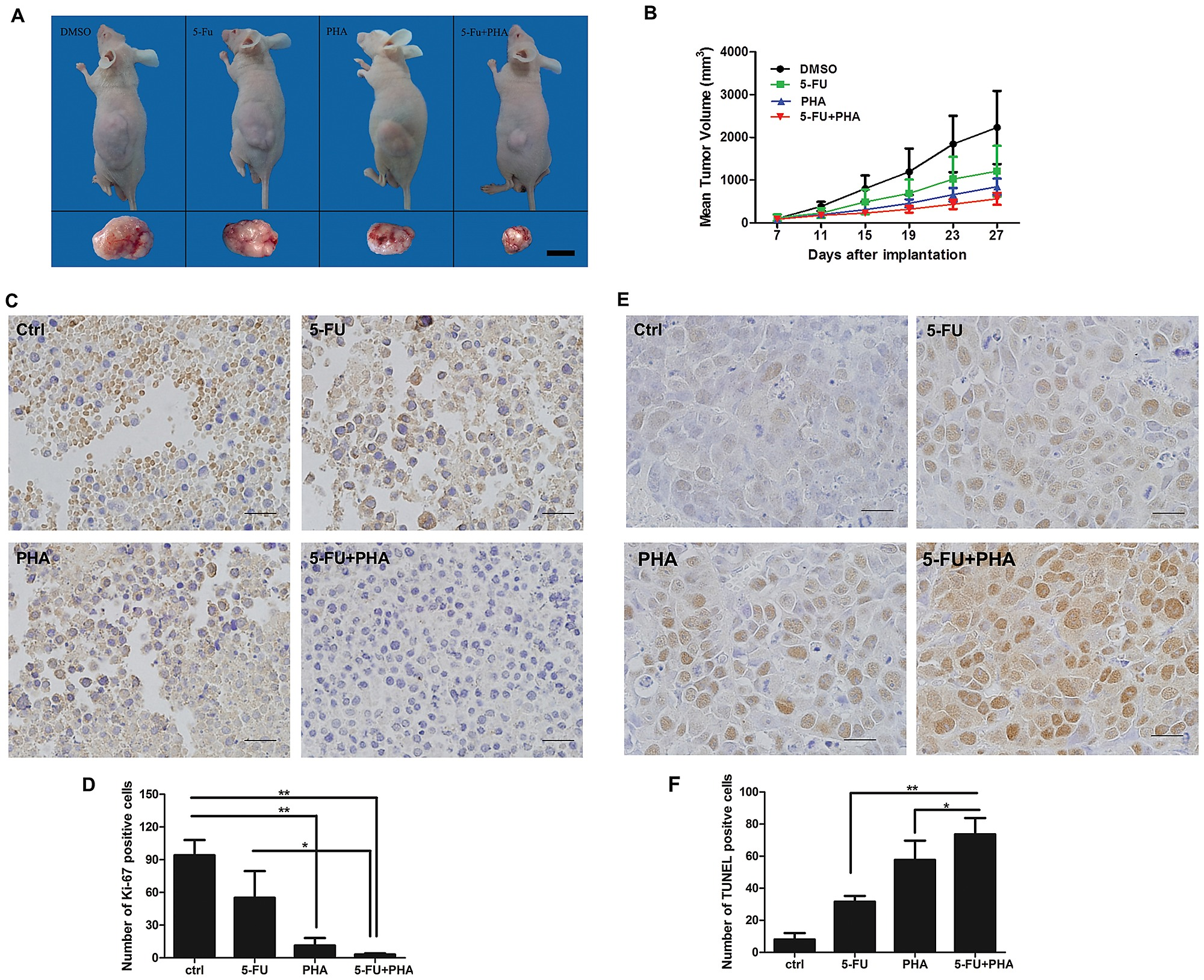 Effects Of C Met Knockdown On The Antitumor Activity Of 5 Fu Chemotherapy In Nude Mice Bearing Human Colon Cancer Sw620 Xenografts
