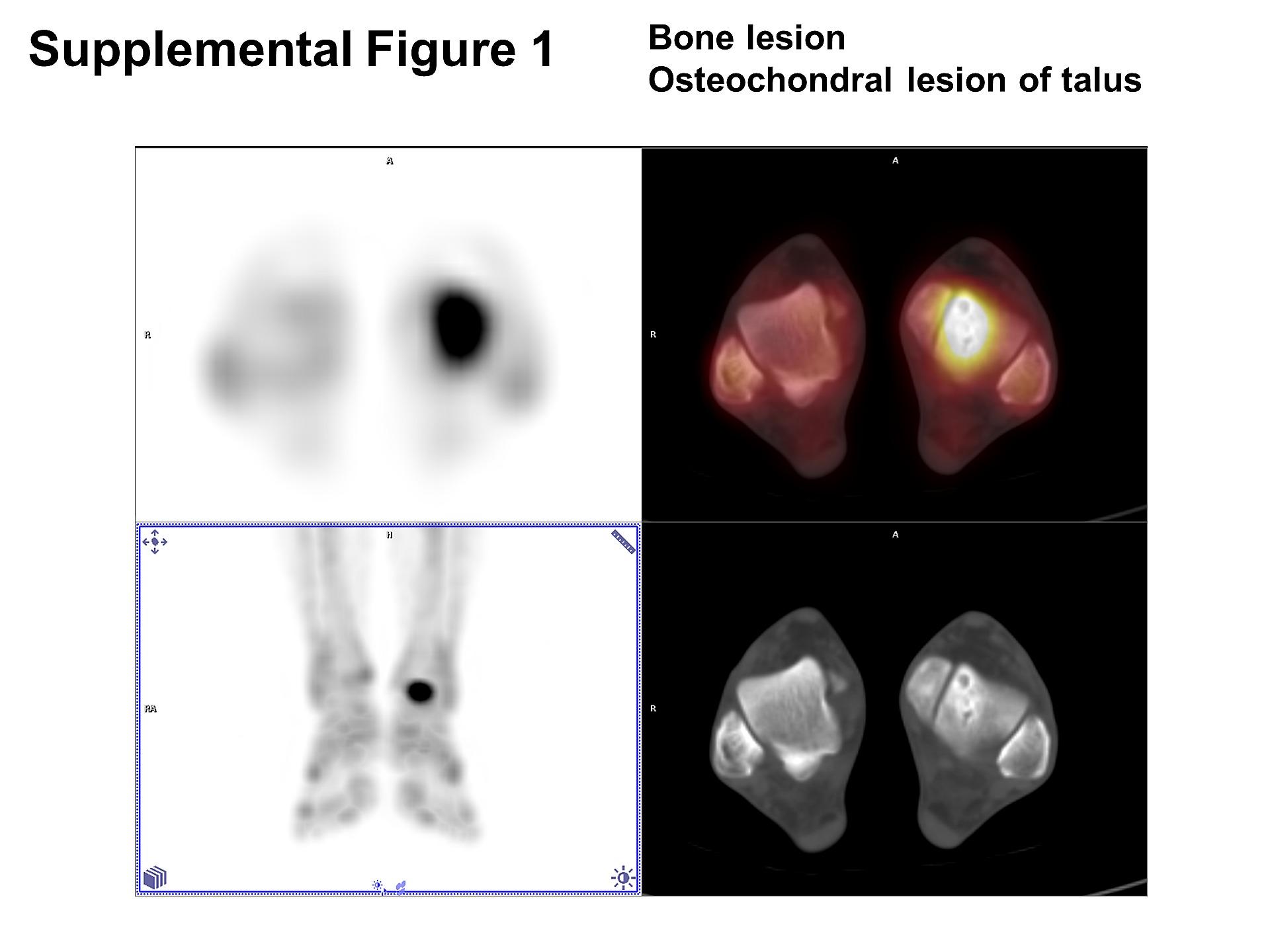 Comparison of SPECT/CT and MRI in Diagnosing Symptomatic Lesions in ...