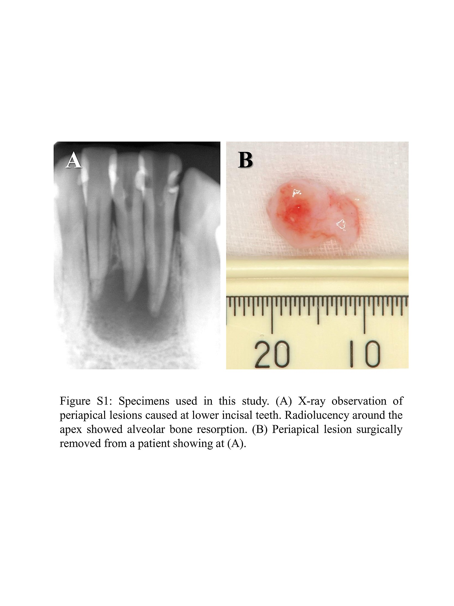 What is a tooth granuloma 18