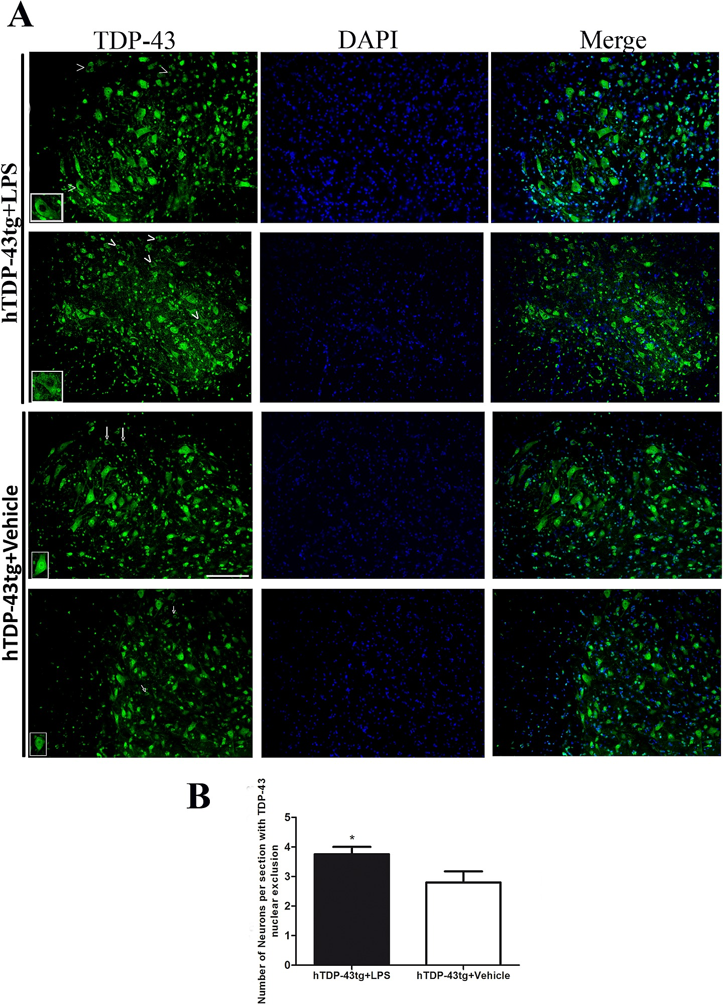 Chronic Lps Treatment Enhanced Nuclear Exclusion Of Tdp 43 In Spinal
