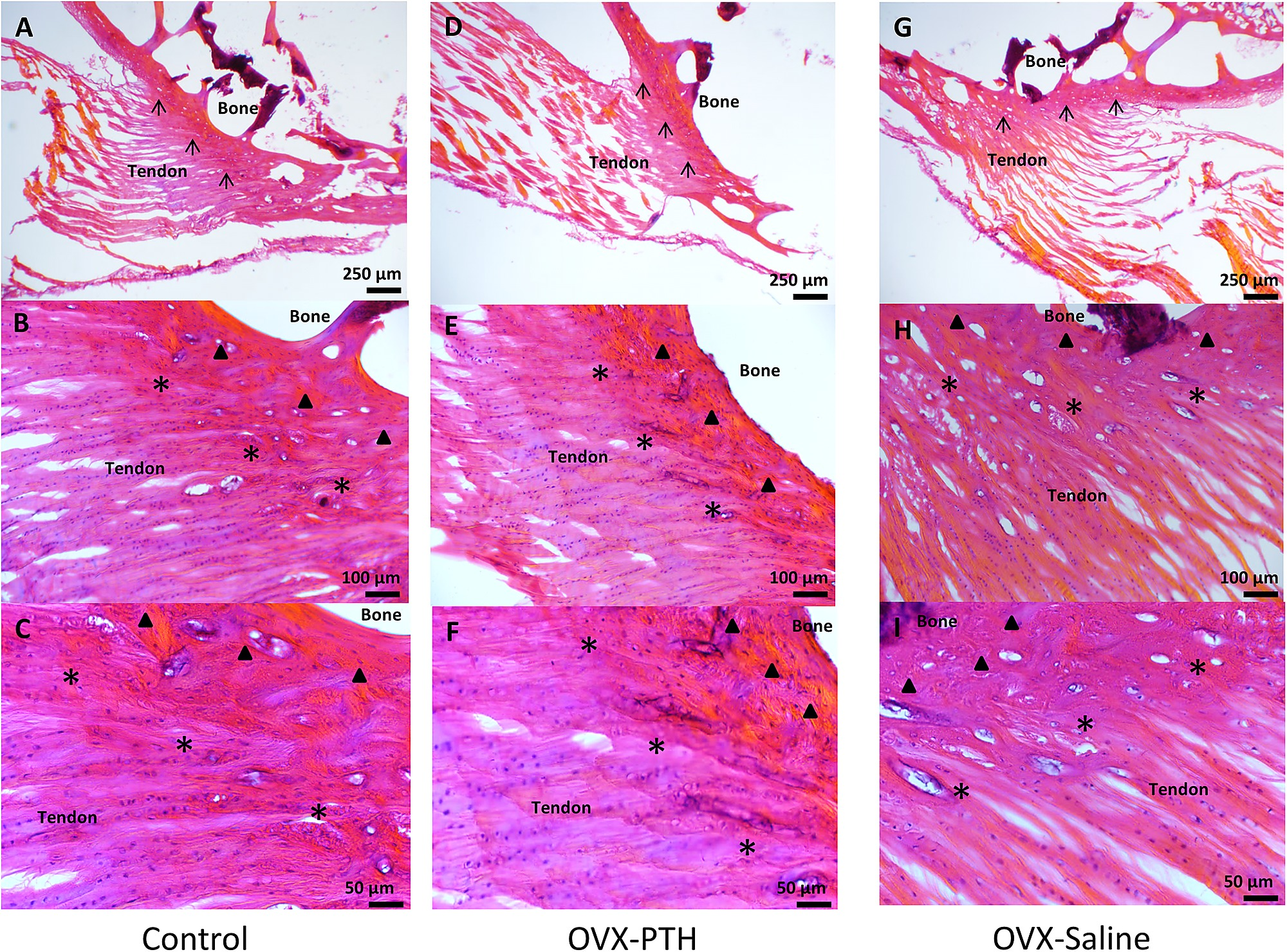 enthesis tenderness Sharpeys fibres enthesis information site at www enthesis info image of enthesis at medscape tenderness in the tibial tuberosity can arise from osgood.