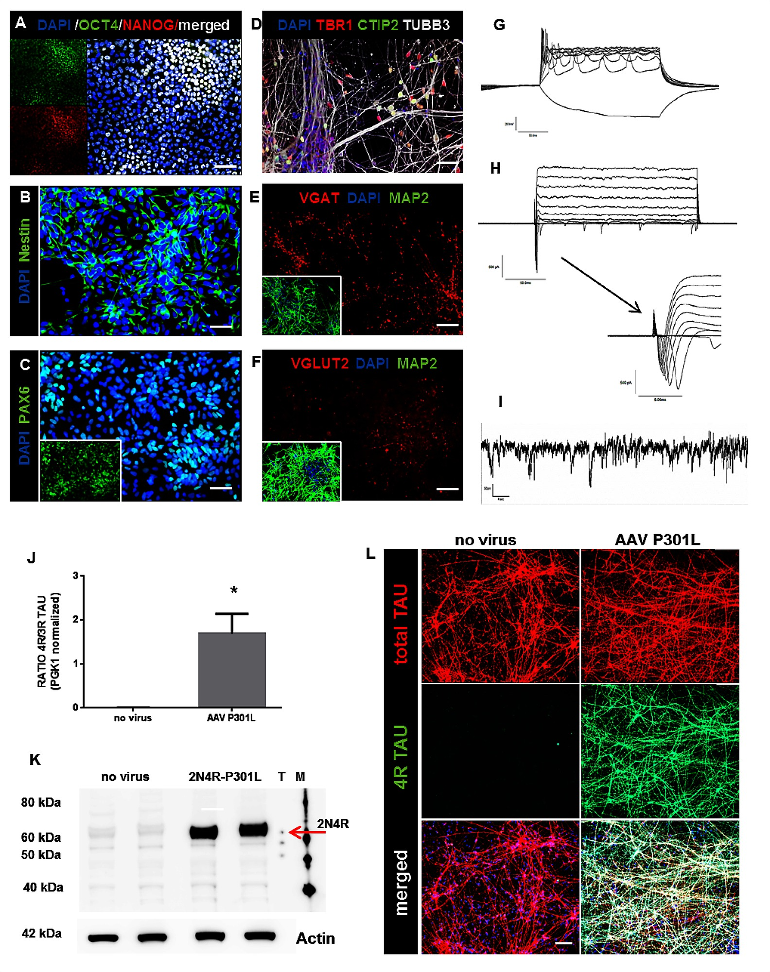 Differentiation of hiPSC into cortical neurons and efficient