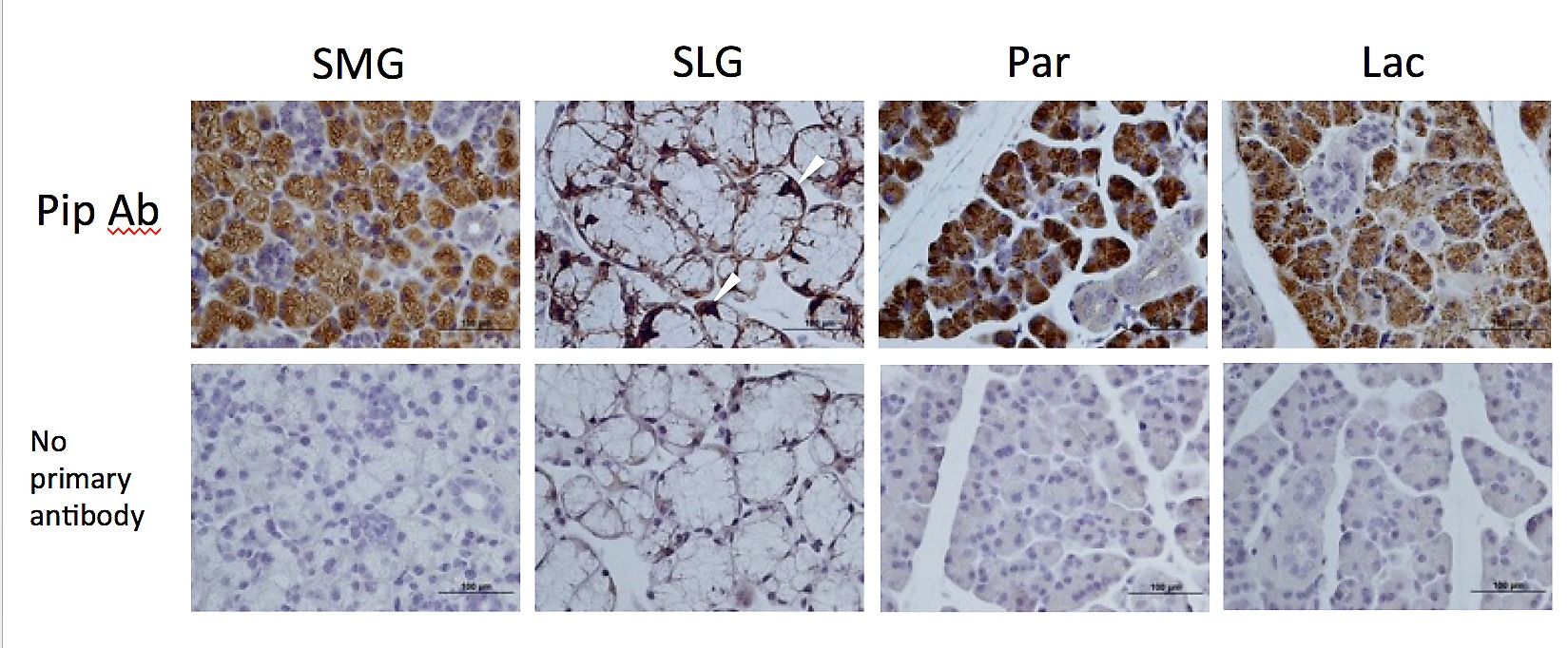 Cell Specific Cre Strains For Genetic Manipulation In Salivary Glands