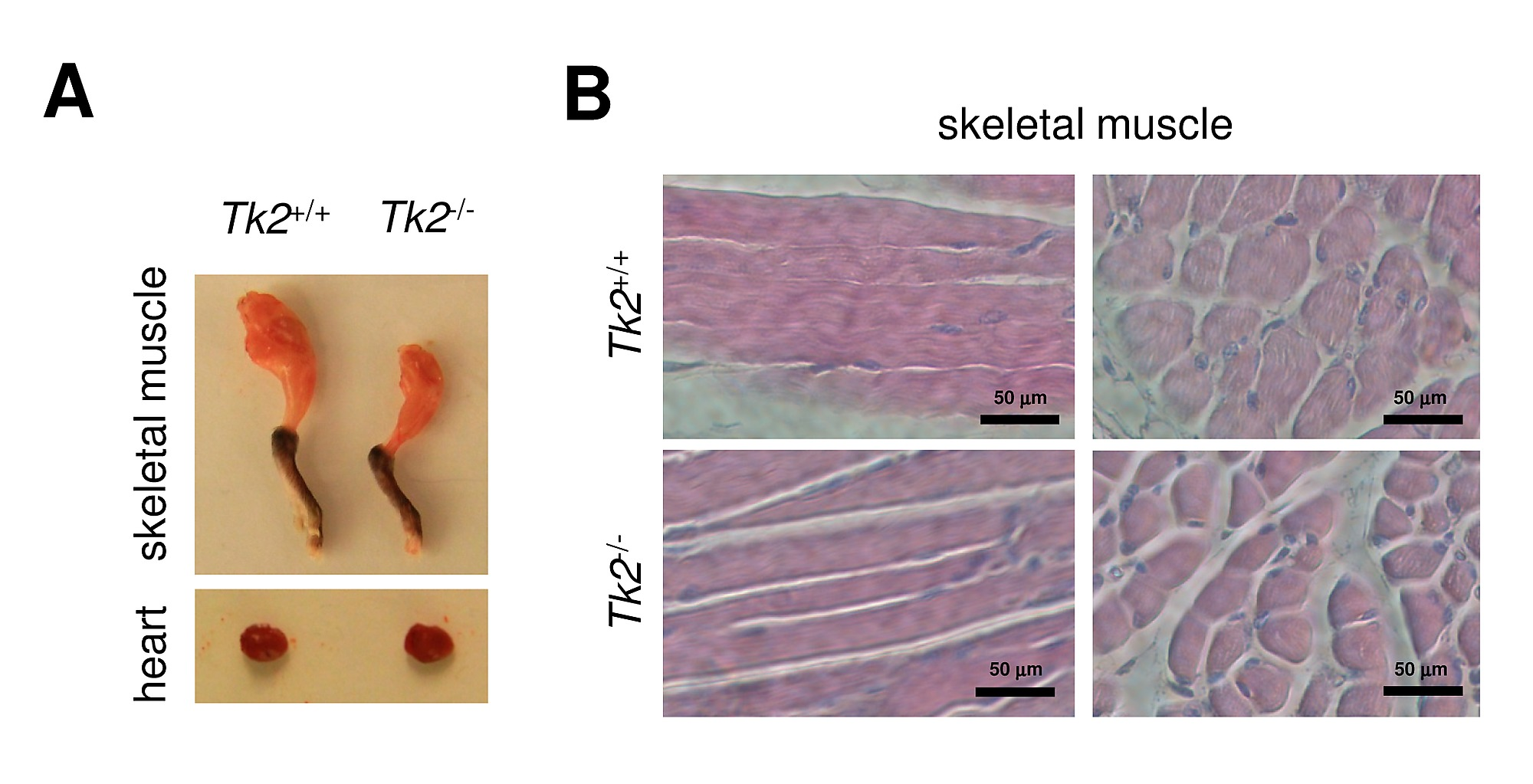 Gene Expression Deregulation In Postnatal Skeletal Muscle Of Tk2