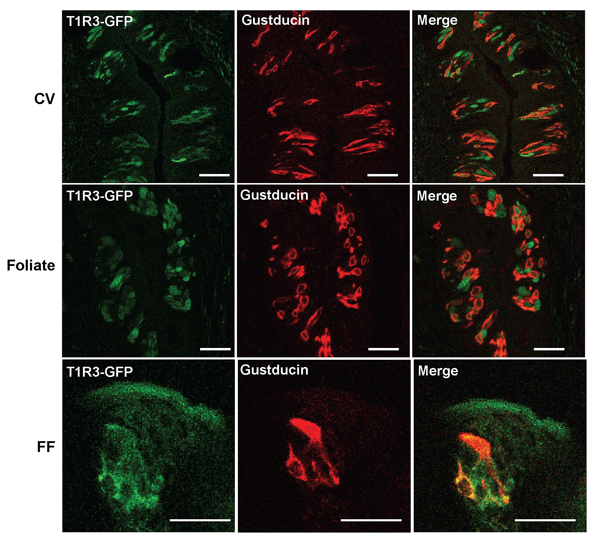 Expression And Secretion Of Tnf In Mouse Taste Buds A Novel