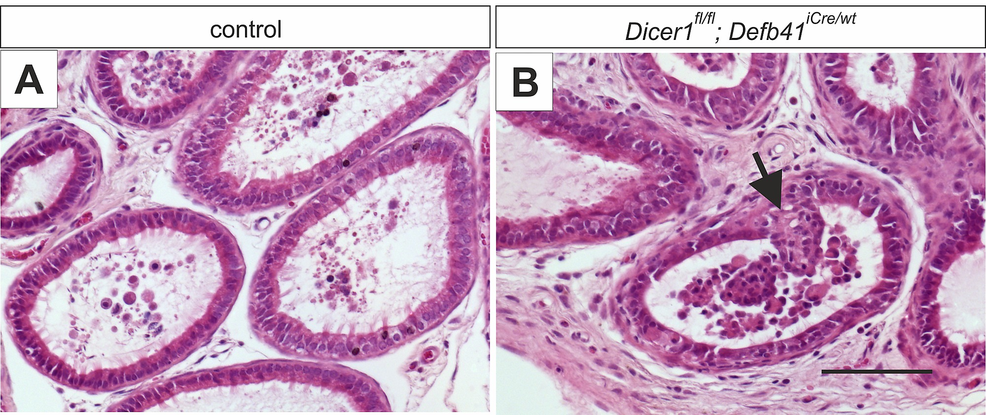 Dicer1 Ablation In The Mouse Epididymis Causes Dedifferentiation Of