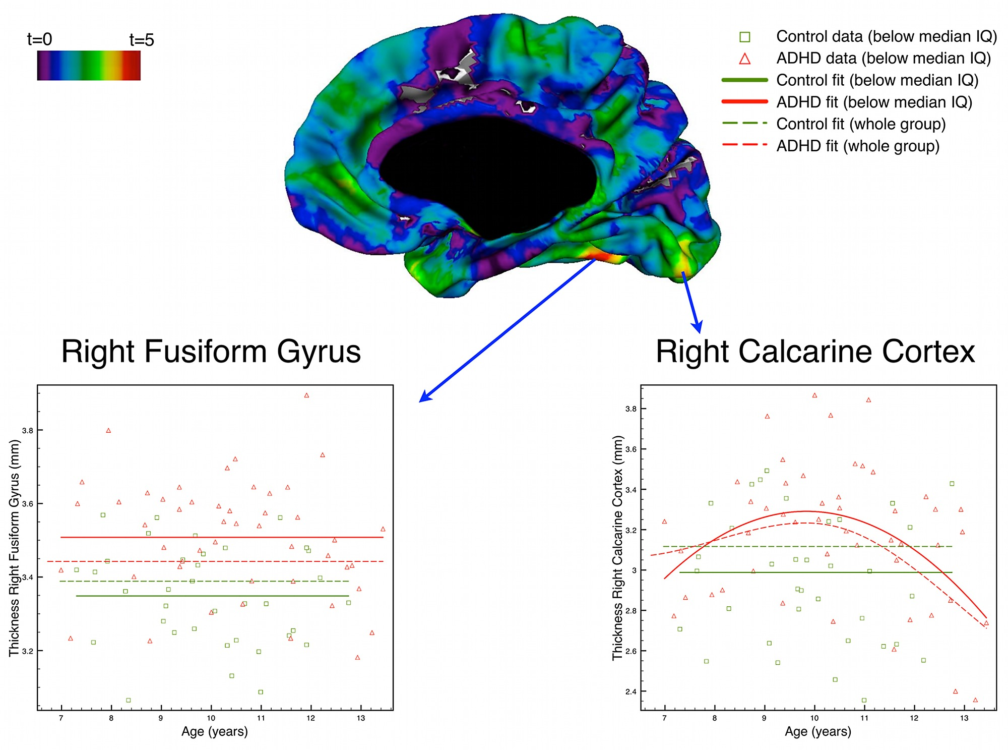 Differential brain development with low and high iq in attention figshare sciox Choice Image