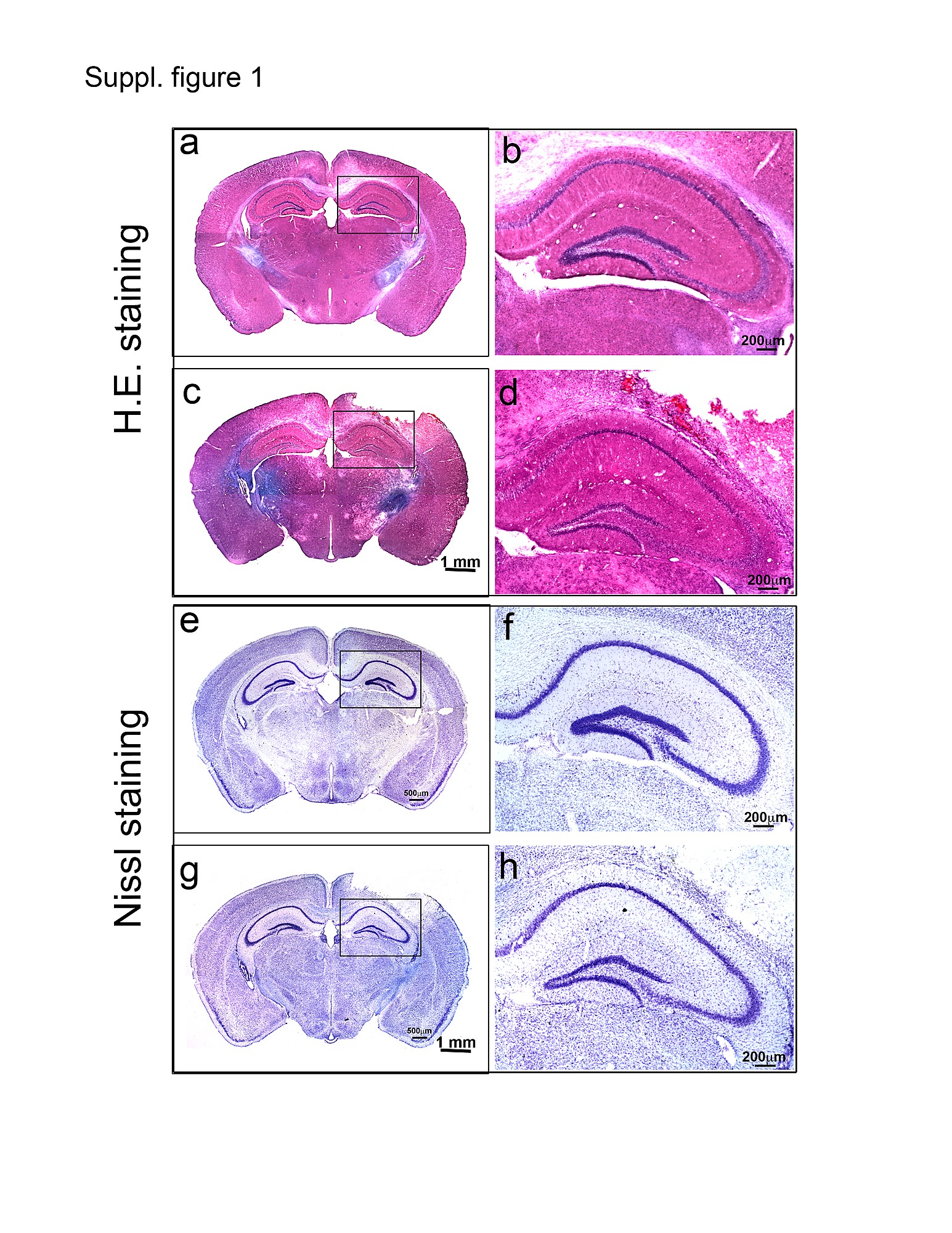 Moderate Traumatic Brain Injury Causes Acute Dendritic And Synaptic