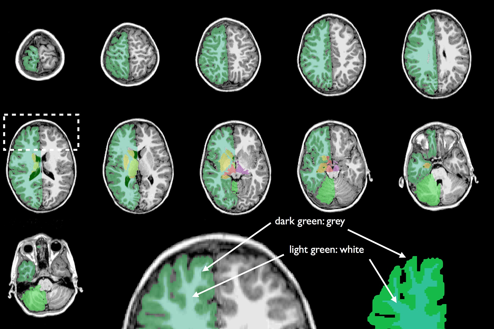 Global and Regional Differences in Brain Anatomy of Young Children ...