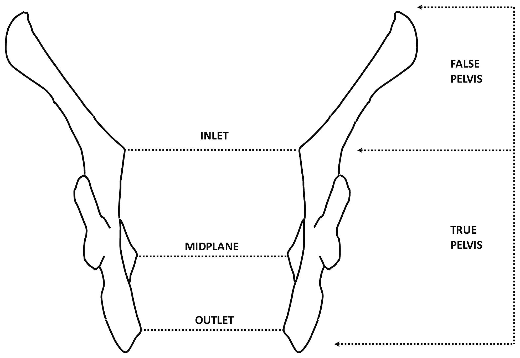 Diagram of the true and false pelvis.