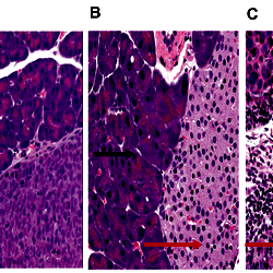 Development of an Orthotopic Human Pancreatic Cancer