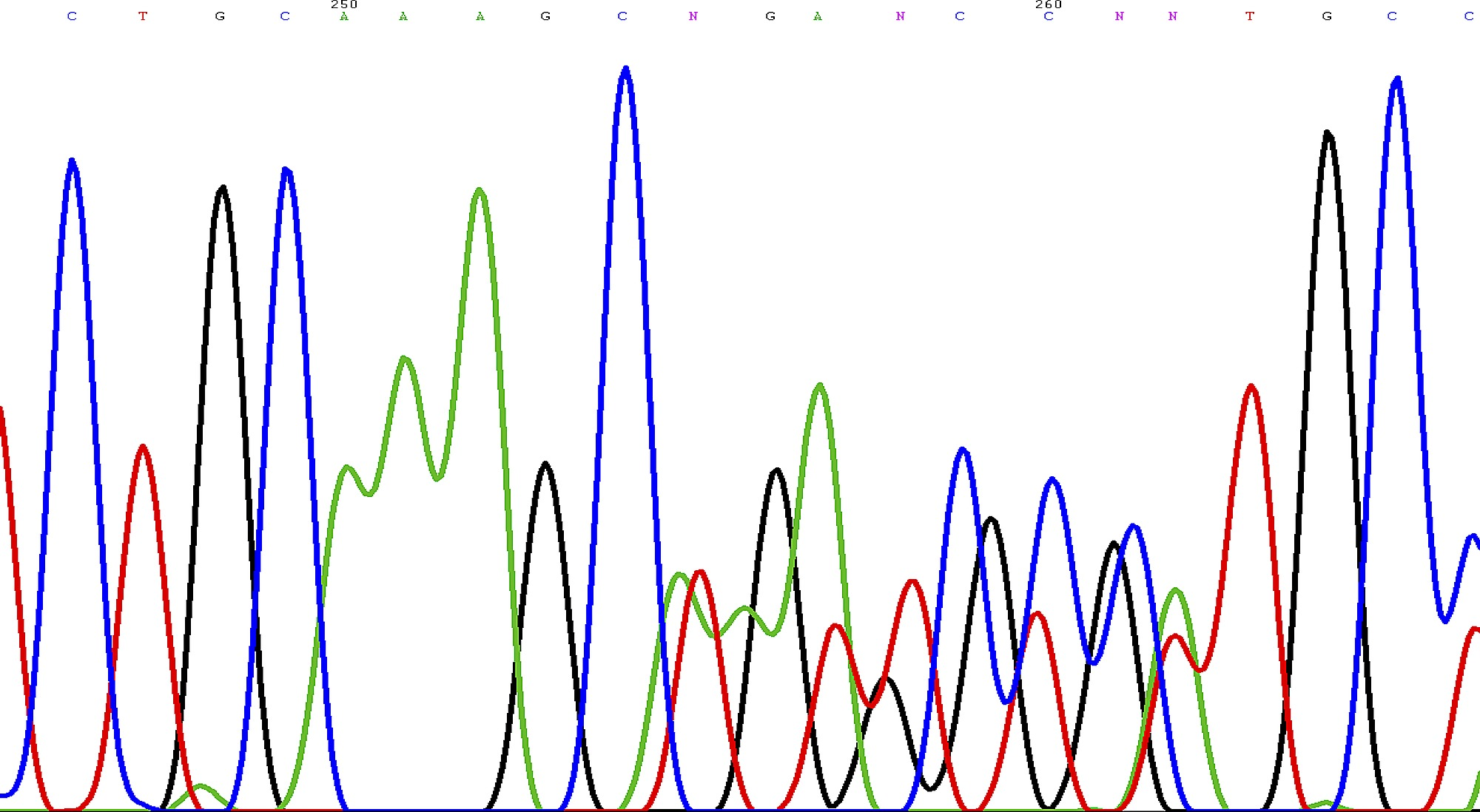 Sequence Chromatogram Showing the Novel Frameshift Mutation of the ...