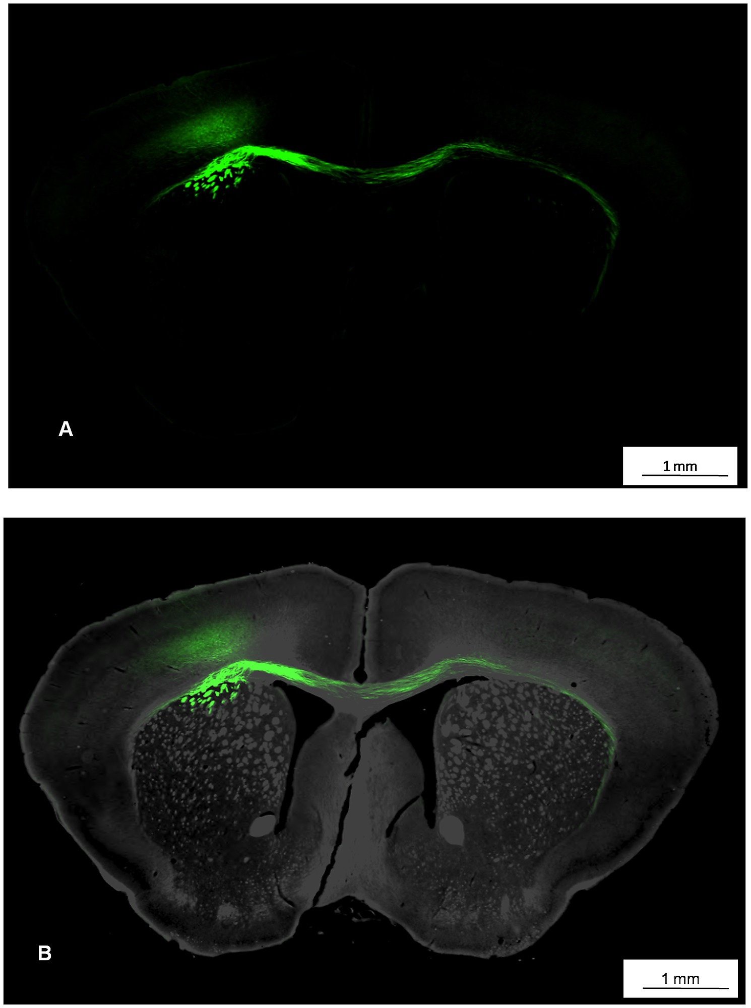 Visualization of the anatomy of a coronal mouse brain slice with ...