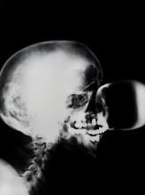Isa Genzken, X-Ray, 1991, foto, 100 x 80 cm, particuliere collectie, foto Gert Jan van Rooij