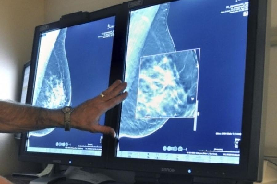 Pittsburgh Post-Gazette: Surgeon's recommendation Often Affects Women's Breast Cancer Choices