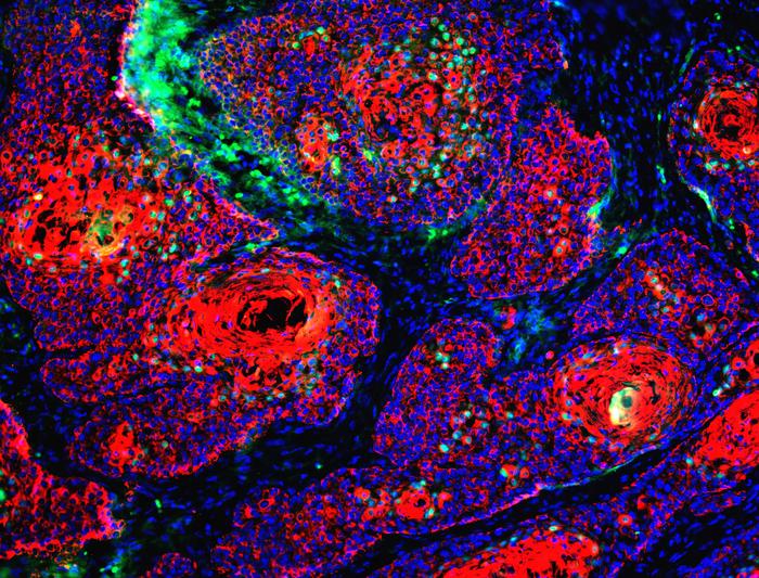Diretta Vita e Salute – Nessuna 'sfortuna', a causare i tumori sono fattori esterni
