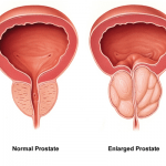 Prostate Care Reiki Energy System
