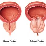 Prostate Care Reiki Energy System