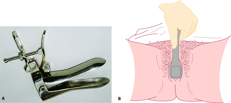 Figure 2.3 A: Cusco's speculum; B: Cusco's speculum in position. The speculum should be inserted at about 45° to the vertical and rotated to the vertical as it is introduced. Once it is fully inserted, the blades should be opened up to visualize the cervix.