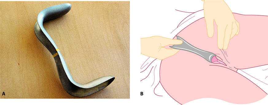 Figure 2.4 A: Sim's speculum; B: Sim's speculum inserted with the patient in the left lateral position. The speculum is being used to hold back the posterior vaginal walls to allow inspection of the anterior wall and vault. The speculum can be rotated 180° or withdrawn slowly to visualize the posterior wall.