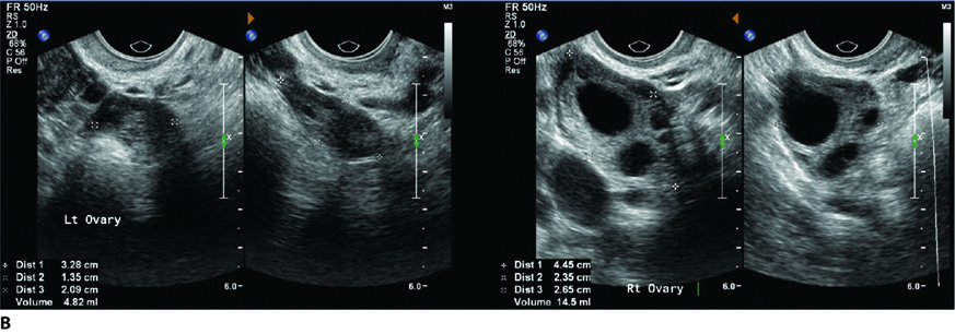 Figure 2.6 A: Transvaginal ultrasound (TVUSS) of normal uterus. B: TVUSS of left and right ovaries; C: TVUSS of haemorrhagic cyst; D:TVUSS of multiseptated cyst.