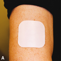 Figure 6.2 A: Combined hormonal patch. B: combined hormonal vaginal contraceptive ring.