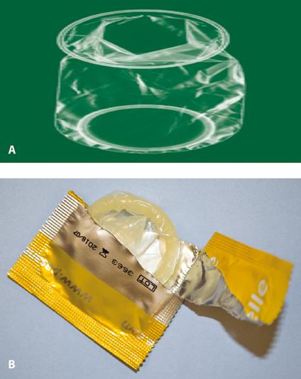 Figure 6.7 A: The cap; B: correct siting of a cap.