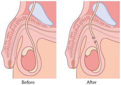 Figure 6.10 Vasectomy.