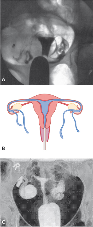 Figure 7.3 A: Hysterosalpingogram (HSG) showing normal patency of the Fallopian tubes; B: pictorial illustration of a normal HSG; C: abnormal HSG with pocketed areas suggesting blocked tubes.