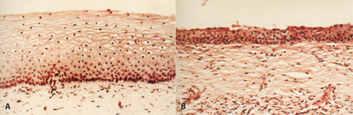 Figure 8.3 Vaginal epithelium in a (A) premenopausal woman and (B) a postmenopausal woman showing atrophic changes. Note the loss of epithelial structure and architecture. (Reproduced with permission, Whitehead MI, Whitcroft SIJ, Hillard TC (1993). An Atlas Of The Menopause. Carnforth, Lancs, UK: Parthenon.)