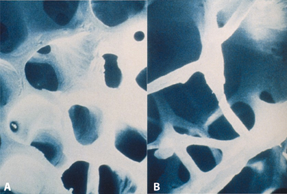 Figure 8.4 Electron micrograph of trabecular bone showing (A) normal structure and (B) osteoporotic bone. Note the loss of architecture and density in (B) making the bone weaker and more prone to fracture. (Reproduced with permission, Whitehead Malcolm I, Whitcroft SIJ, Hillard TC (1993). An Atlas Of The Menopause. Carnforth, Lancs, UK: Parthenon.)