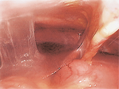 Figure 9.3 Fitz-Hugh–Curtis syndrome showing perihepatic adhesions (typical violin string appearance).