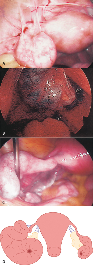 Figure 9.4 A: Peritubal adhesions of the left Fallopian tube; B: ectopic pregnancy within hydrosalpinx; C: left Fallopian tube hydrosalpinx; D: large hydrosalpinx of the left Fallopian tube with a smaller hydrosalpinx on the right side.
