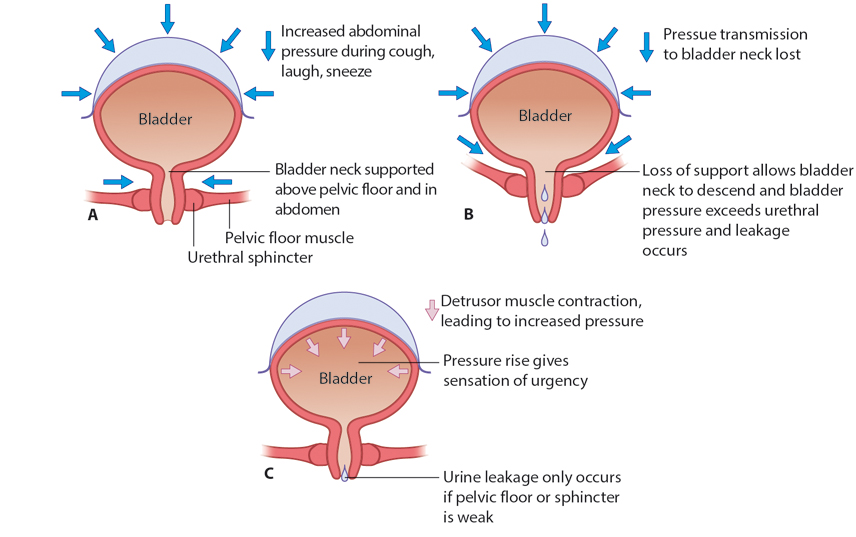Figure 10.1 Mechanism of continence. In normal women, the bladder neck is supported above the pelvic floor and so abdominal pressure increases are transmitted to the bladder neck (A). Loss of bladder neck support results in descent of the bladder neck and loss of pressure transmission, resulting in leaking when coughing, straining, etc (stress incontinence) (B).Detrusor overactivity causes increased sensation; leakage only occurs if the contraction pressure exceeds the pelvic floor and sphincter pressure (C).