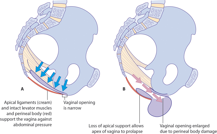 Figure 10.10 Development of prolapse. The pelvic floor and ligaments work together to provide support against increases in abdominal pressure (A). Prolapse is almost invariably associated with perineal body damage causing an enlarged vaginal opening. Prolapse can then occur if the apical (level 1) support is lost (B), or if the pelvic floor muscles are ineffective (C) or directly as a result of perineal body deficiency (D). Often, a combination of factors is at work.