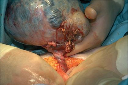 Figure 11.2 Torsion of a dermoid cyst at laparotomy.