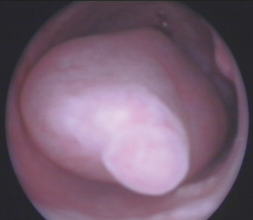 Figure 12.2 A hysteroscopic view of an endometrial polyp.