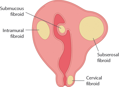 Figure 12.3 Diagram showing the typical sites of uterine fibroids.