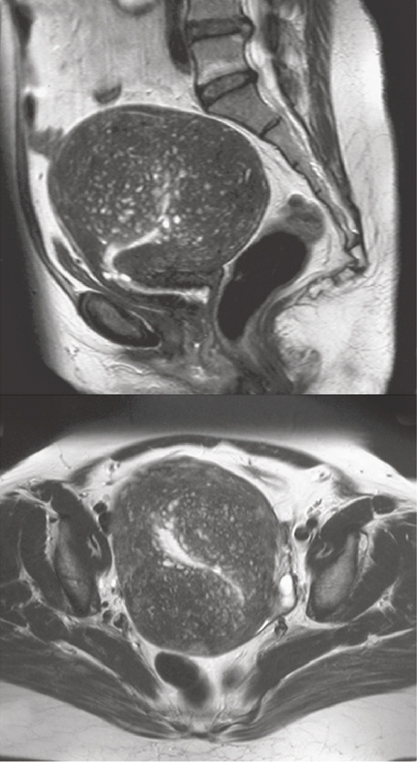 Figure 12.6 MRI showing adenomyosis – note the bright reflections of the central endometrium and flecks of ectopic endometrium in the underlying myometrium.