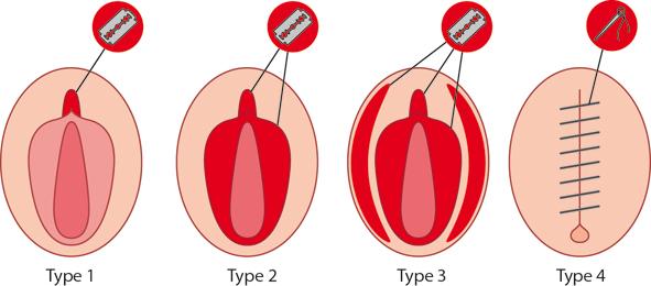 Figure 13.4 Types of female genital mutilation.