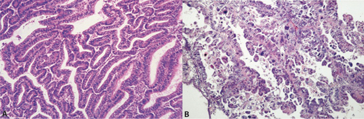 Figure 15.1 Histological comparison of endometrial adenocarcinoma (A) with endometrial serous carcinoma (B).