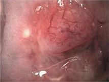 Figure 16.2 Normal cervix with nabothian follicle.
