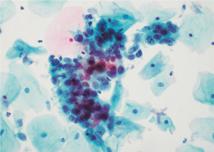 Figure 16.4 Liquid-based cytology – severe dyskaryosis.