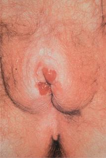 Figure 16.11 Vulval cancer.