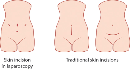Figure 17.1 Incisions used in gynaecological surgery.