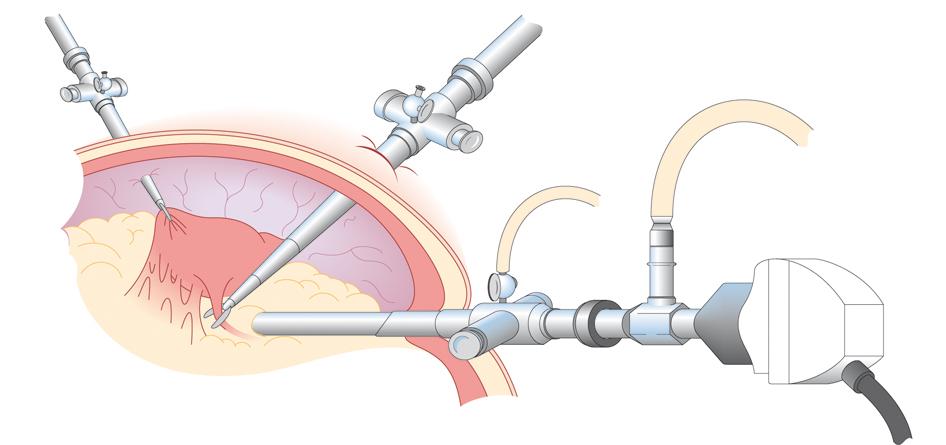 Figure 17.5 Schematic diagram showing laparoscope.