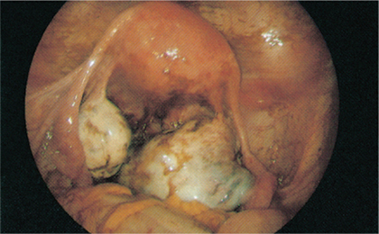 Figure 17.6 Laparoscopic view of bilateral endometriomas.