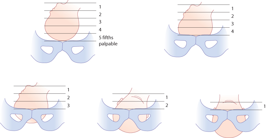 Figure 1.5 Palpation of the fetal head to assess engagement.